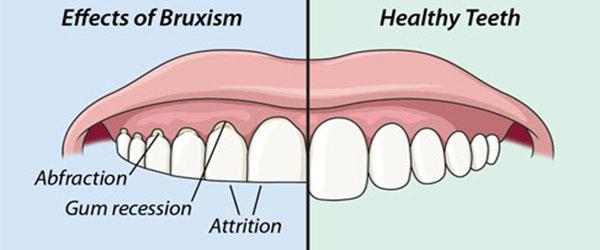 bruxism diagram
